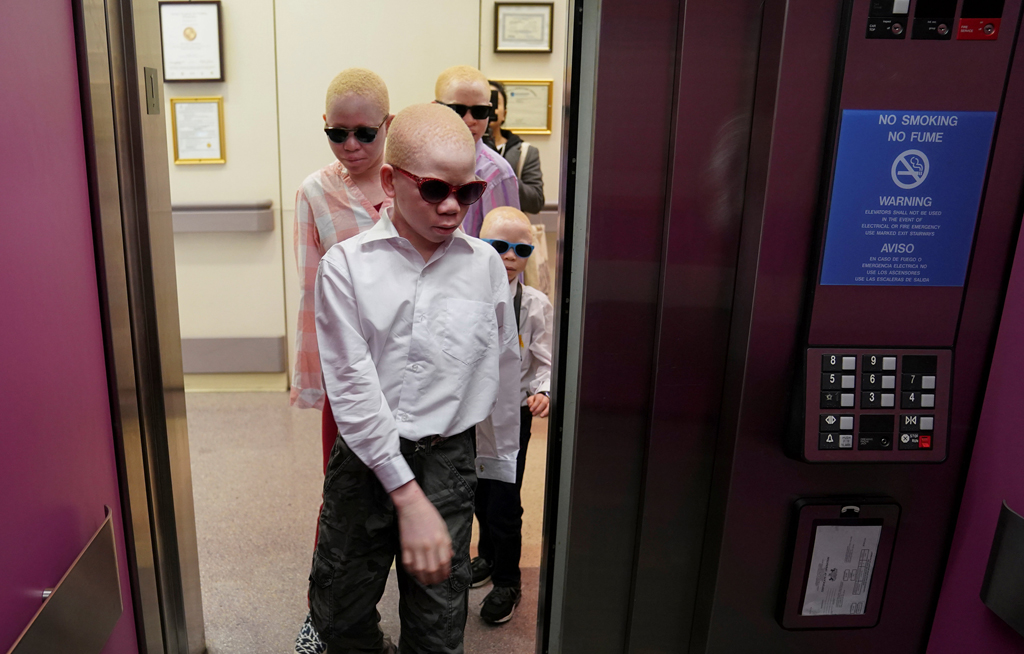 web_photo_albinism_10062017